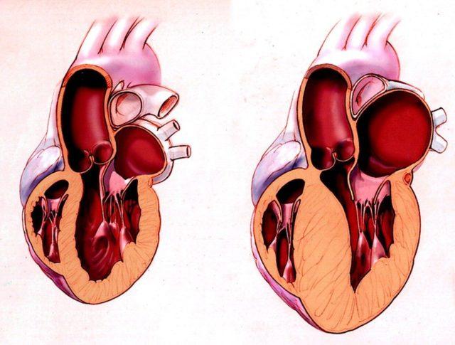 Выраженные изменения выявляют у пациентов с тяжелой сердечной недостаточностью, а умеренные могут наблюдаться при отсутствии каких-либо субъективных симптомов