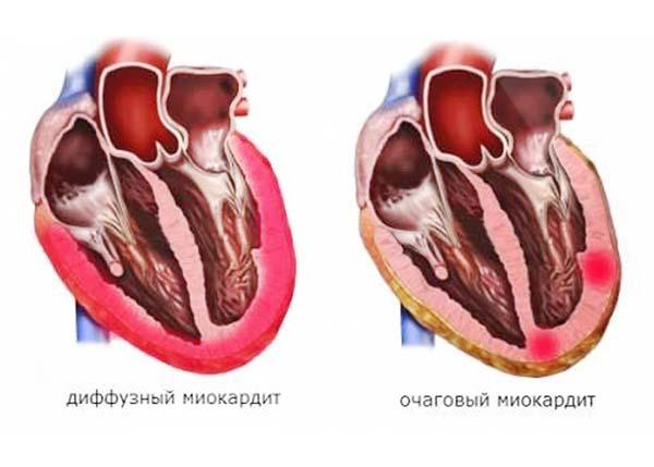 Патологический процесс, поражающий все миокардиальные клетки, называют диффузными изменениями миокарда