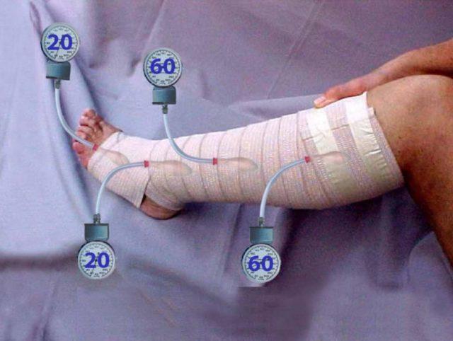 Подбираются строго индивидуально с учетом стадии заболевания и параметров ног больного