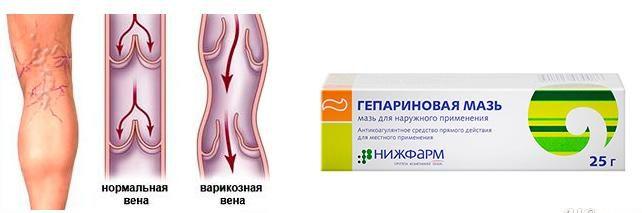 Бензоникотиновая кислота нужна для расширения сосудов на ногах, чтобы гепарин лучше всасывался. А бензокаин - местный анестетик, эффективно обезболивает