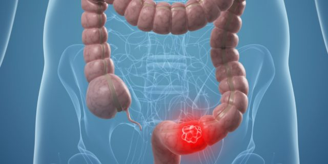 Характерным признаком инфаркта кишечника является интенсивная боль в животе при полном отсутствии каких-либо объективных данных во время обследования пациента