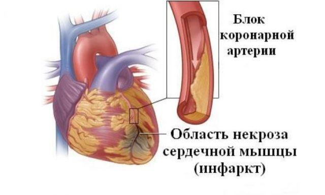 Мелкоочаговый (субэндокардиальный, интрамуральный) инфаркт – очаг поражения относительно небольшой