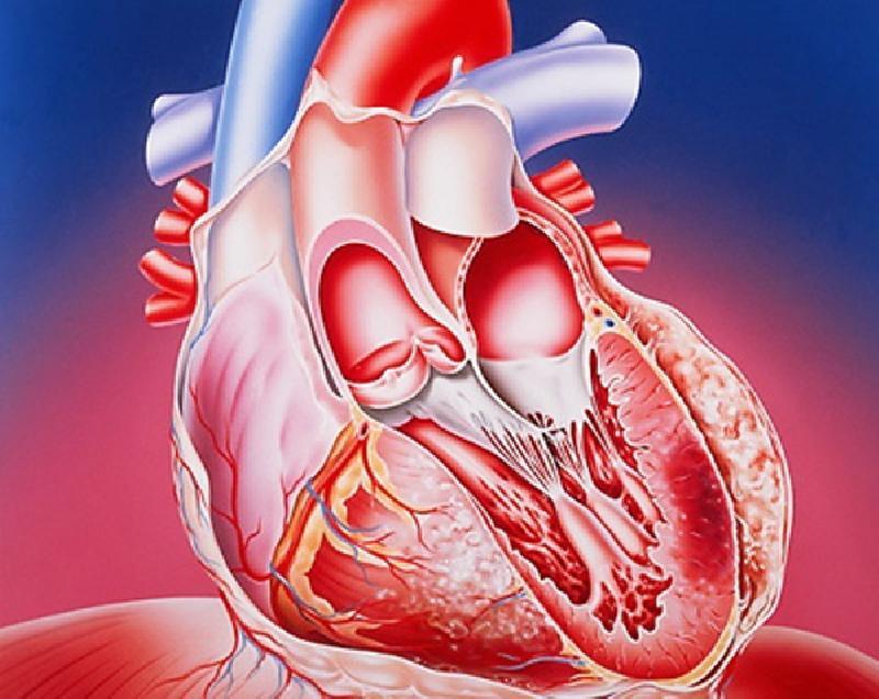 Ко 2 типу инфаркта миокарда относится
