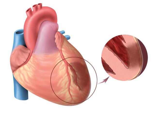 Выделяют инфаркт миокарда с патологическим зубцом Q и без него