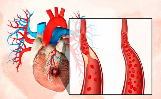 В результате некроза участок мышцы перестает работать и нарушается насосная функция сердца