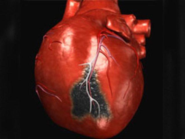 После инфаркта сердца большинству пациентов остро необходимо длительное восстановление, полноценная психологическая поддержка