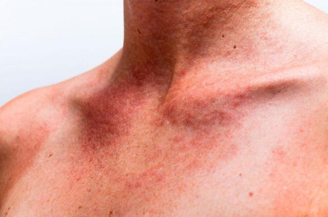 Не стоит применять гель при нарушениях свертываемости крови