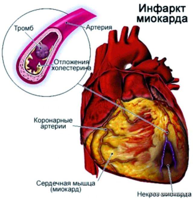 Наиболее частой среди причин разрыва сердца считается инфаркт (некроз) сердечной мышцы