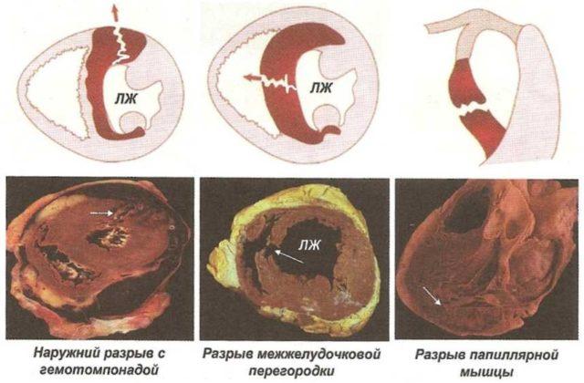 В дальнейшем риск развития разрыва снижается по мере формирования постинфарктного рубца