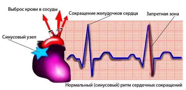 На кардиограмме проявляется в виде неравных промежутков между сердечными сокращениями