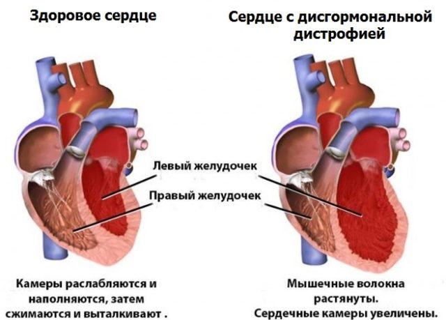 Изменения в работе сердца при дистрофии миокарда носят обратимый характер
