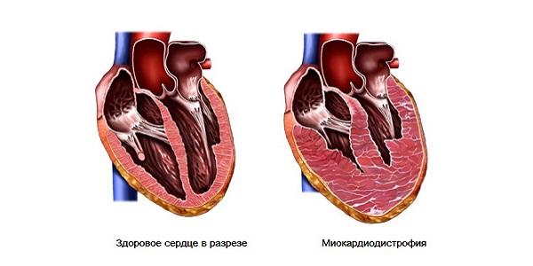 Зачастую это заболевание является осложнением сердечных болезней, сопровождаемых нарушением питания миокарда