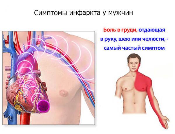 Часто наблюдается загрудинная боль, которую можно спутать с болью в животе