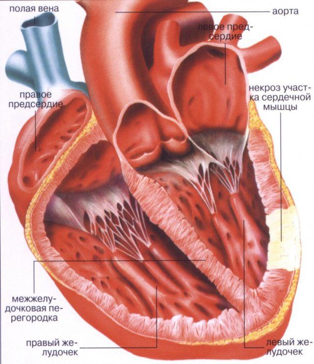 Ткани сердца испытывают дефицит кислорода и питательных веществ и перестают выполнять свою функцию