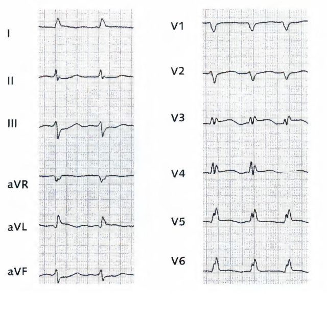 На основании построенной прибором кардиограммы врач ставит диагноз