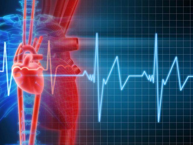 Обширный инфаркт часто даёт осложнения даже при своевременном лечении
