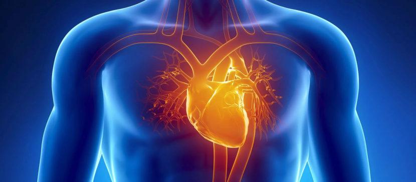 Обширный инфаркт риск 4 степени