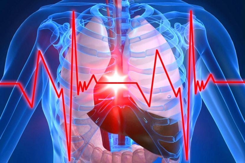 Операции по периферической реваскуляризации - анестезиологическое обеспечение