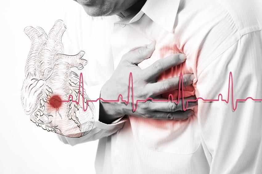 Характер боли при инфаркте миокарда ⋆ Лечение Сердца