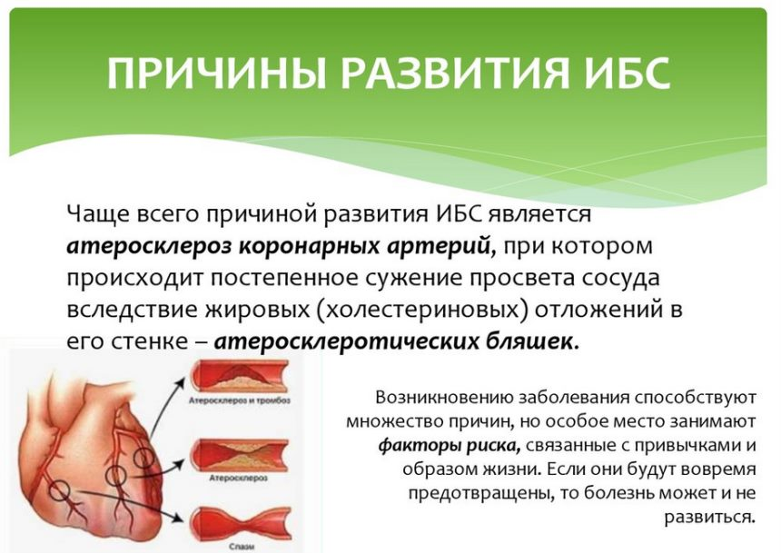 Заболевания код МКБ 10- ИБС