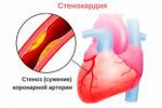 Функциональные классы стенокардии напряжения