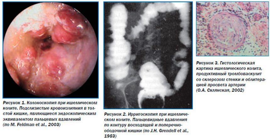 Последствие ишемии кишечника