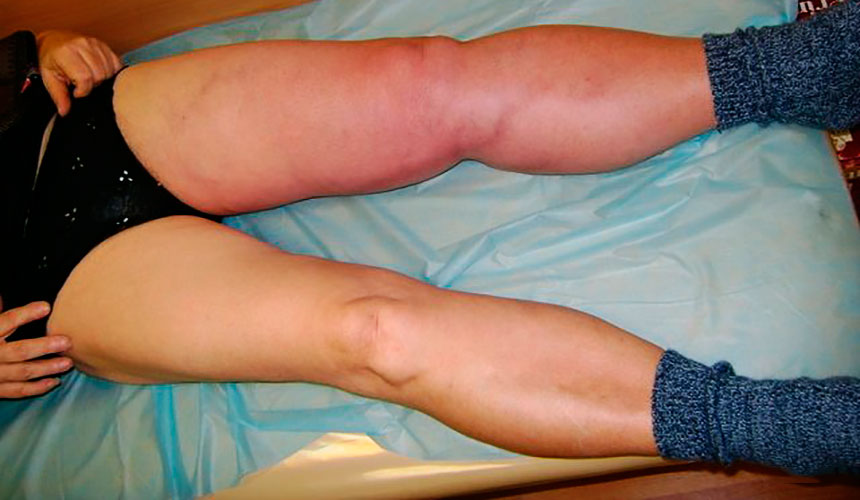 Ишемия ног
