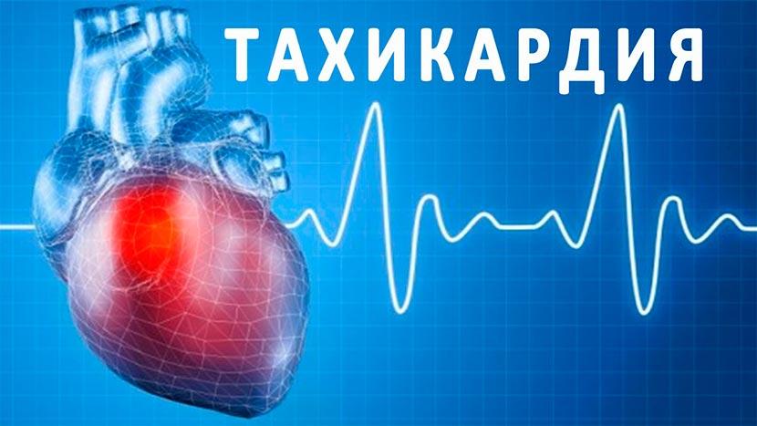 Как лечить тахикардию сердца лекарства