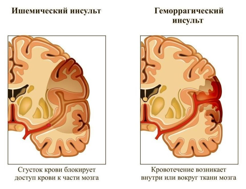 Чем отличаются ишемический и геморрагический инсульты