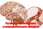 Различия ишемического и гемморагического инсульта