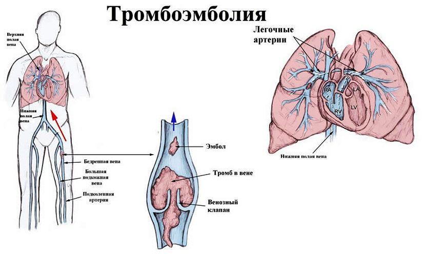 Причины тромбоэмболии