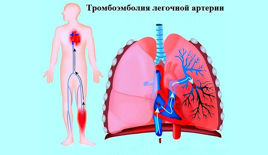 Симптомы и лечение ТЭЛА