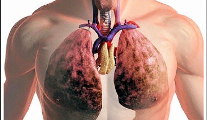 Формы тромбоэмболии