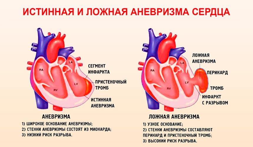 Виды аневризмы сердца