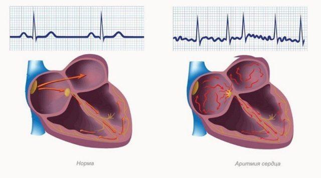 При наджелудочковой аритмии в сердце продуцируются дополнительные экстрасистолы