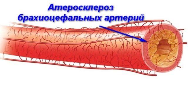 Брахиоцефальные артерии снабжают кислородом головной мозг, и при нарушении кровообращения пациенту угрожает серьезная опасность