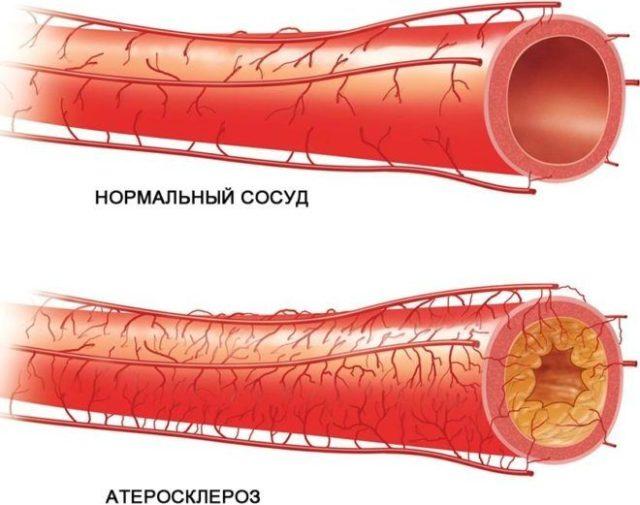 Отличие от классической формы состоит в том, что поражаются артерии и сосуды головного мозга