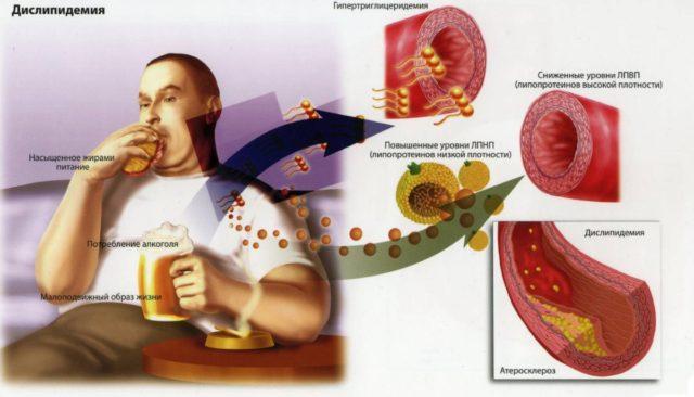 Питание с избыточным употреблением жареной, острой, солёной пищи и животных жиров