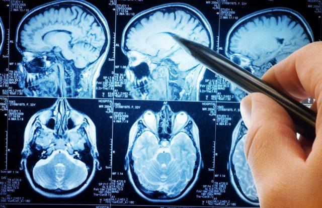 Важно своевременно обратиться к специалисту в области кардиологии, ангиохирургии и неврологии
