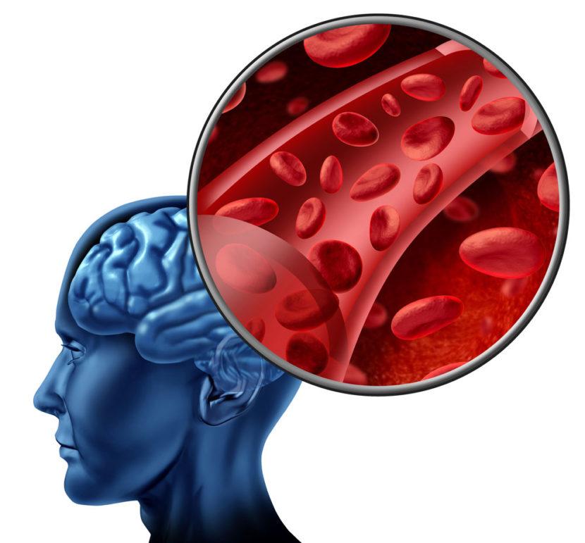 Нестенозирующий атеросклероз артерий
