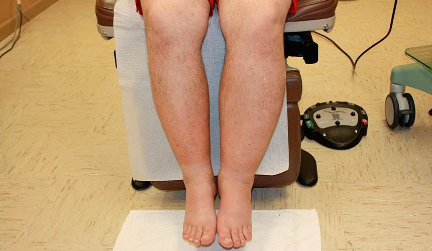 Лимфостаз ноги