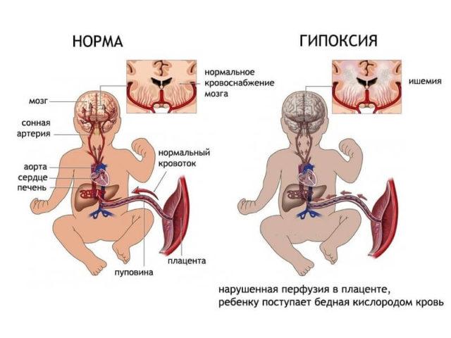 Любые неблагоприятные воздействия на будущую маму или сам плод во время беременности и родов могут оказаться пагубными для нервной ткани
