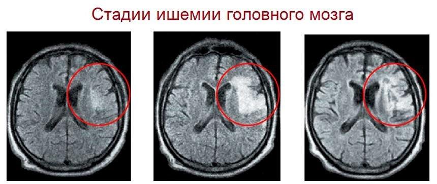 Ишемия мозга на МРТ