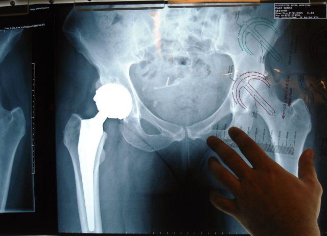 На рентгеновских снимках заболевание становится заметным только на второй или третьей стадиях болезни