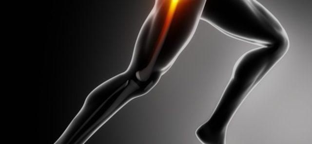 Вследствие нарушения кровоснабжения, осуществляется некроз отдельных участков костного мозга головки бедренной кости, по сути, происходит ее инфаркт