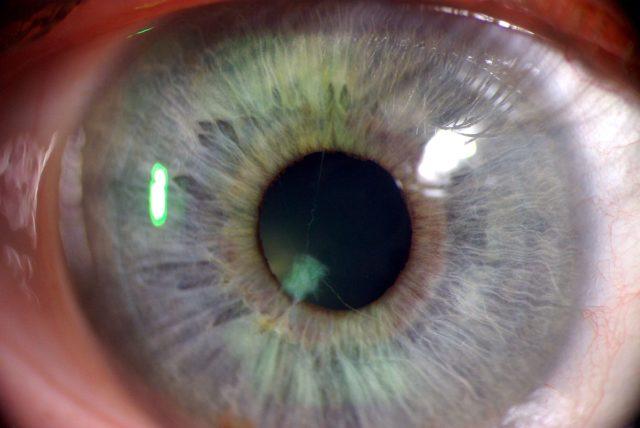 В механизме развития задней ишемической нейропатии ведущая роль принадлежит расстройству кровообращения в задних отделах зрительного нерва