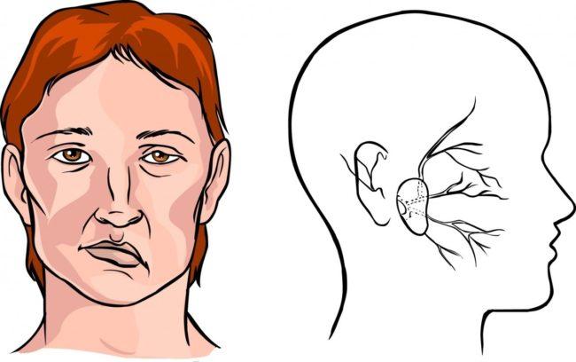 Проявления очагового поражения зависят от того, в бассейне какой артерии, питающей мозг, произошел некроз