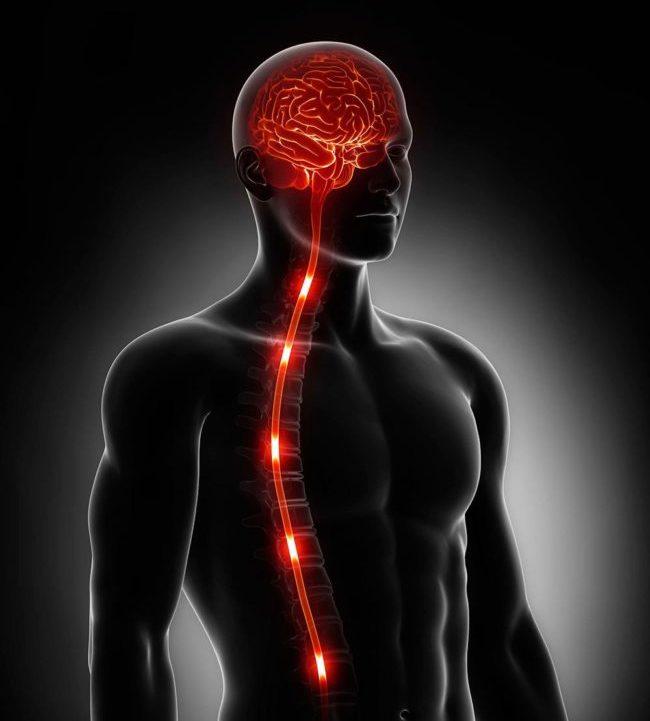 Чаще всего развивается парезы или параличи верхних конечностей с выраженным расстройством чувствительности