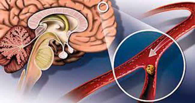Головной мозг образован высокоспецифичной тканью, которая имеет высокую потребность в кислороде, и является чрезвычайно чувствительной к его недостатку