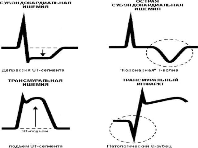 Субэндокардиальные артерии первыми страдают от нарушения кровоснабжения сердца